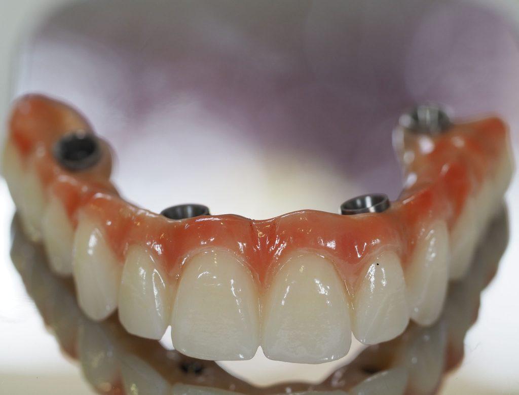 fazer com que os implantes dentários durem muitos anos